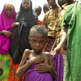 Abshivay Hussein Maalin, 13, suffering from malnutrition.